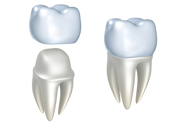 Diagram of dental crowns from Janice Pliszczak, DDS in Syracuse, NY