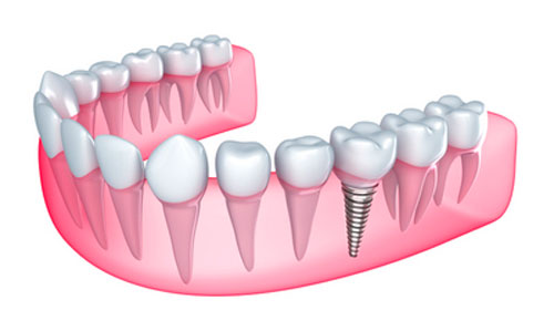Caring for Original Teeth Plus Dental Implants