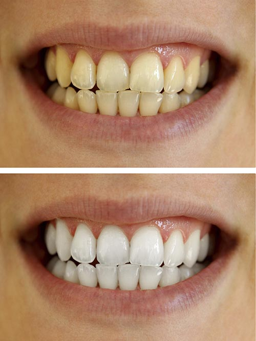 Teeth Whitening before and after images.