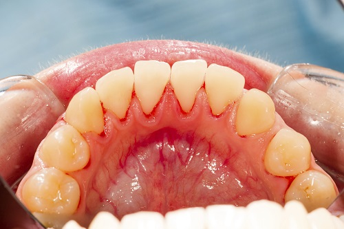 A close up of a patients teeth suffering from gum disease.